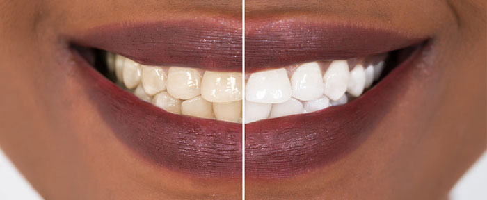 B LUX Collection Beauty Bar Best Teeth Whitening Plano Tx