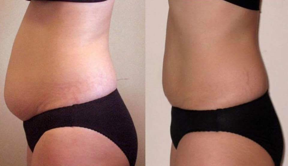 Excellence Laser Lipo™