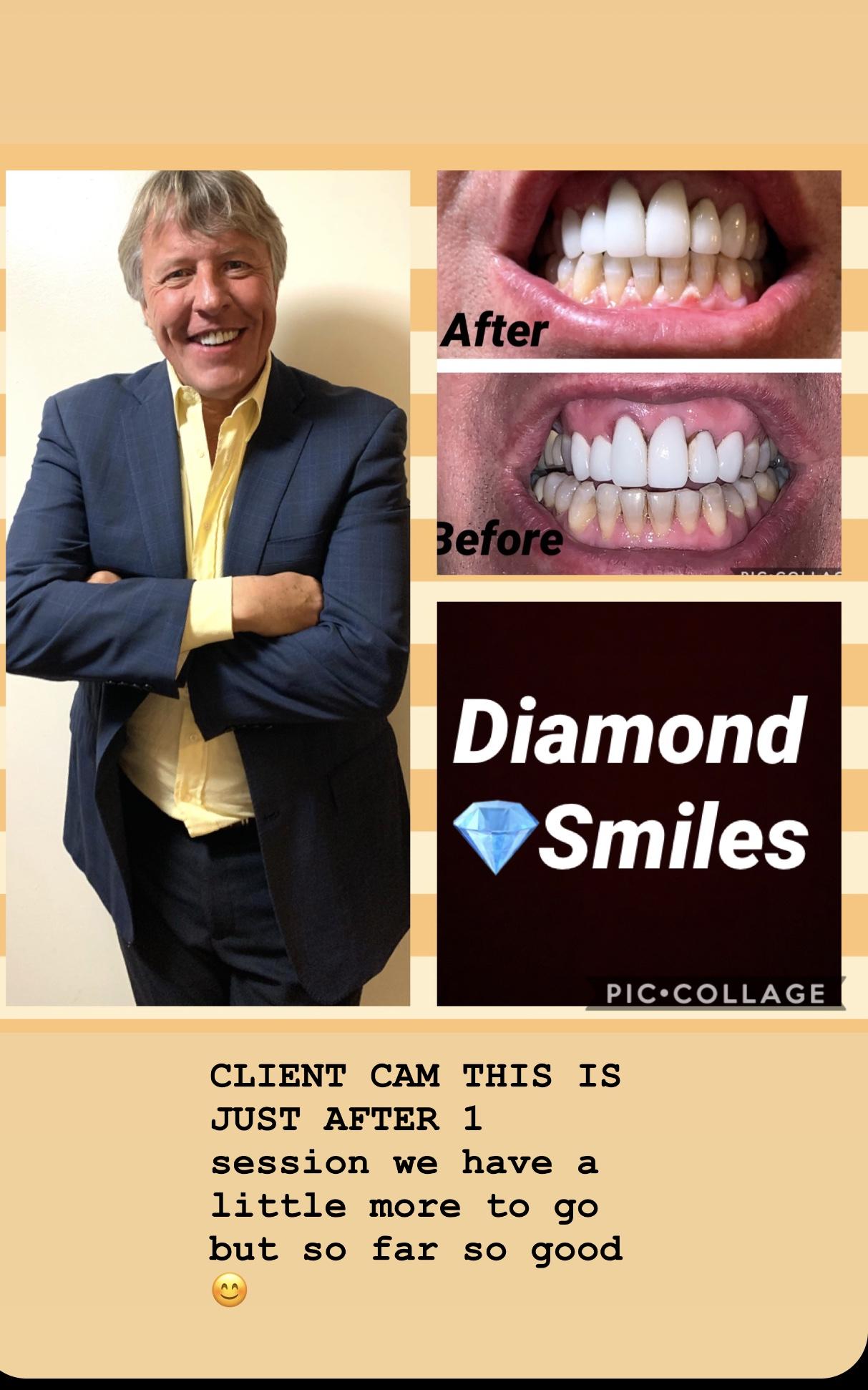 Diamond Smiles By. Ladii