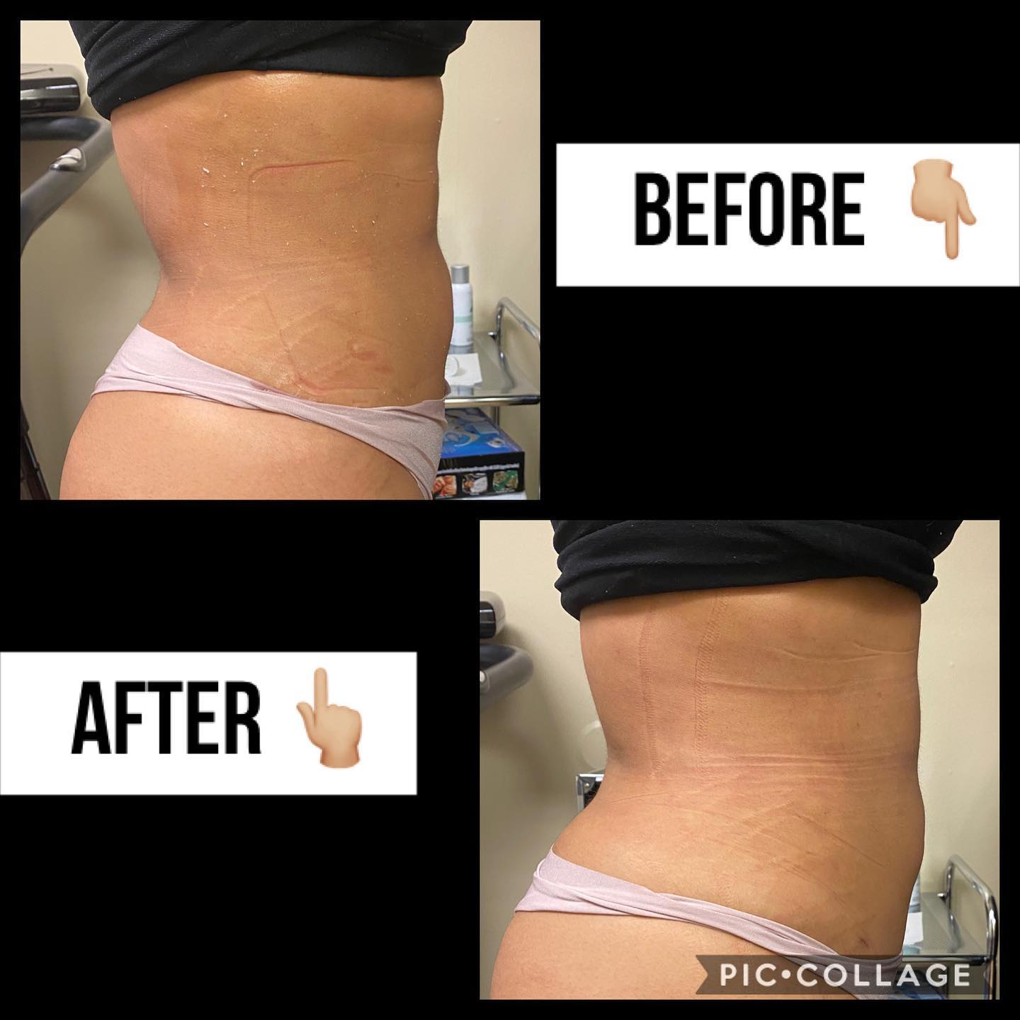 BODY BY JULISSA NON SURGICAL BODY SCULPTING